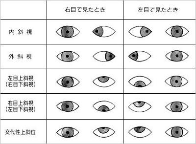 引用:目の病気スッキリ解消